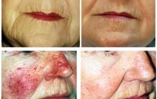 Vorher- und Nachhereffekt mit den Produkten MarBell Active Skin Serum und MarRicco Body Repair Concentrate